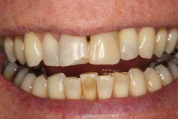 dental implants honley dental